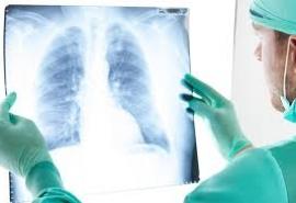 Виновата экология: омичи выбились в лидеры по онкологии органов дыхания