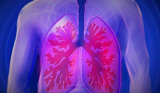 Пять ранних симптомов рака легких, которые часто пропускают