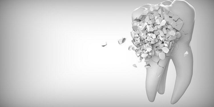 Медики установили связь между нечищенными зубами и болезнью мозга