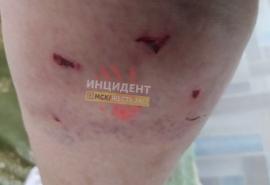 Омичка показала последствия жестокого нападения собаки